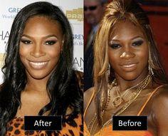 Serena Williams Plastic Surgery