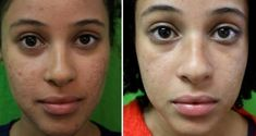 How can you get rid of black spots on face quickly due to pimples? Get insights on how to remove black spots from face naturally fast. The post explores more on home remedies for black spots, dark and marks due to pimples, acne scars and hyper-pigmentatio Laser Acne Scar Removal, Acne Scar Removal Treatment, Acne Spot Treatment, Biotin Benefits, Pimple Marks, How To Remove Pimples, Acne Solutions