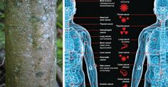 The Cure To Multiple Invasive Cancers Can Be Found In This Natural Bark