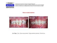 Casi clinici ortodontici Morso crociato anteriore http://www.studiodentisticobalestro.com/2015/06/morso-crociato-anteriore.html