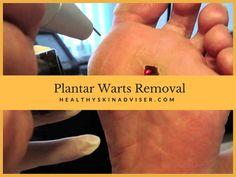 13 best plantar wart removal images health home remedies natural rh pinterest com