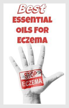Best Essential Oils to Stop Eczema