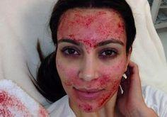 Kim Kardashian's Bloody Vampire Facial — Is This Nuts? Vote Get the latest news on Kim Kardashian Kim Kardashian, Kardashian Memes, Plasma Facial, Dermapen Microneedling, Vampire Facial, Derma Roller, Les Rides, Catherine Zeta Jones, Skin Treatments