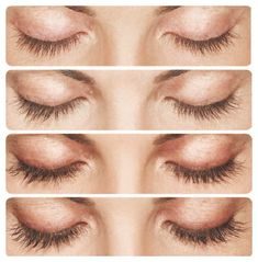 Getting thicker and fuller eye lashes is now no longer is a difficult task as there many medicines available in market today but the best medicine is Latisse - bimatoprost ophthalmic solution