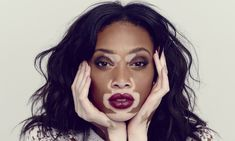 """What this beautiful model's physical condition, or """"ailment"""" called vitiligo should tell us  all about race, the power of an Illusion to make us Not see that beauty is only in the eyes of the beholder, and is only """"skin deep..""""!"""