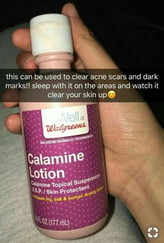 Calamine lotion for acne scars and dark marks – Fitness Tips Acne Treatment, Skin Treatments, Clear Skin Tips, Clear Skin Products, Acne Products, Body Acne, Healthy Skin Care, Perfume, Just In Case