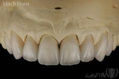 Teeth Shape, Dental Art, Dentistry, Anatomy, Porcelain, Posters, Smile, Album, Ceramics