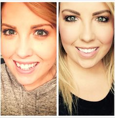 has experienced a great teeth transformation! What a confident smile. Kids Braces, Clear Aligners, Family Dentistry, Transformation Tuesday, White Teeth, Beautiful Smile, Ark, Confident, Dental
