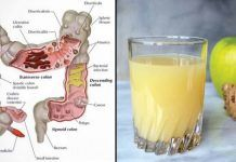 Watch This Video Daunting Home Remedies for Natural Colon Cleansing Ideas. Inconceivable Home Remedies for Natural Colon Cleansing Ideas. Colon Cleanse Diet, Natural Colon Cleanse, Bowel Cleanse, Colon Detox, Ginger Juice, Apple Juice, Juice 2, Ginger Water, Recipes