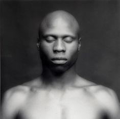Robert Mapplethorpe - KEN MOODY - 1983. Ken's level of alopecia was absolute, even extending to losing his eyelashes. Beautiful image...