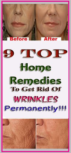 9 Home Remedies To Get Rid Of Wrinkles Permanently! Top 9 Home Remedies To Get Rid Of Wrinkles Permanently! Top 9 Home Remedies To Get Rid Of Wrinkles Permanently! Anti Aging Tips, Anti Aging Skin Care, Skin Care Remedies, Home Remedies, Natural Remedies, Health Routine, Wrinkled Skin, Healthy Exercise, Pregnancy Health