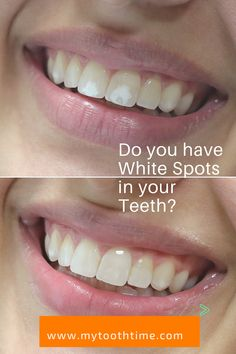 d293eb8739ded55472e71b970ce11378 - How To Get Rid Of White Spot Lesions On Teeth