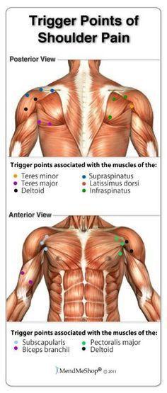 Trigger points of shoulder pain …