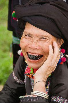 The Black Teeth of A Black Lu Hilltribe Woman - Tam Duong, Vietnam