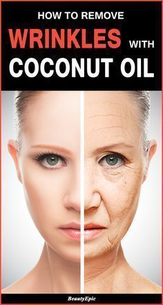 How to Remove Wrinkles with Coconut Oil #HomemadeMoisturizerForFace Coconut Oil For Face, Coconut Oil Facial, Coconut Oil Nails, Uses For Coconut Oil, Coconut Oil Lotion, Coconut Oil Beauty, Organic Coconut Oil, Beauty Box, Beauty Tips