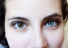 Heterochromia: A rare phenomena when the eyes have two different colors. Pretty and scary!! العيون ذات اللونين المختلفين... ظاهرة نادرة و غريبة .... أنا شايفاها جميلة.. اية رأيكم؟ 4