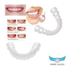 Snap-On Dentures - Perri Angel Perfect Teeth, Perfect Smile, Im Not Perfect, Dental Implant Procedure, Dental Implants, Veneers Teeth, Dental Veneers, Teeth Braces, Smile Teeth