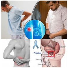 BEST TIPS FOR HEALTHY AND DISEASES: Most Effective Treatment of Prostate Cancer Back P...