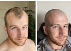 Weird shaped head going bald