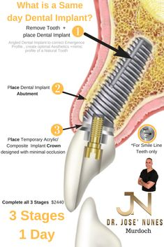 Samson residents needing affordable dental implants and quotes (prices) for each stage Listed here 4 stages takes place over 3 to 6 months. Placing Implants since 1999 and only 5 minutes from we Samson understand time is money. Call today for a Price Tooth Extraction Care, Tooth Extraction Aftercare, Implant Dentist, Teeth Implants, Dental Hygienist, Dental Assistant, Cosmetic Surgery Prices, Affordable Dental Implants, Teeth Whitening That Works