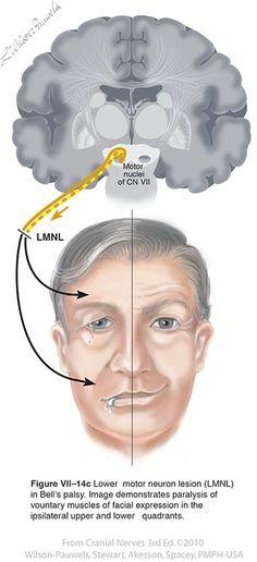 Facial VII - Cranial Nerves Nerve Anatomy, Brain Anatomy, Medical Anatomy, Anatomy And Physiology, Neurological System, Facial Anatomy, Facial Nerve, Gross Anatomy, Craniosacral Therapy