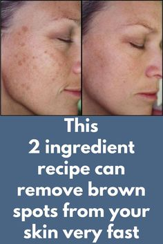 This 2 ingredient recipe can remove brown spots from your skin very fast Brown spots on the skin are also known as liver spot Brown Spots On Skin, Brown Spots On Face, Sun Spots On Skin, Liver Spots On Hands, Facial Brown Spots, Dark Patches On Skin, How To Get Rid, How To Remove, Skin Problems