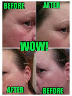 I used WOW and all I can say is...WOW! www.laughloudandwrap.myitworks.com