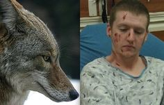 Colorado Man Attacked By A Pack of Coyotes