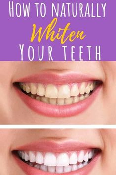 Teeth Whitening Want pearly white teeth? Step away from the chemical-ridden store-bought teeth whitening kits and try one of these easy, at-home natural DIY teeth whitening recipes - for sparkling, white teeth without the harsh ingredients! Teeth Whitening Bleach, Teeth Bleaching, Natural Teeth Whitening, Whitening Kit, Tumeric For Teeth Whitening, Virginia Beach, Teeth Whiting At Home, Skin Care Routine For 20s, White Teeth