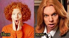 Carrot-Top-Plastic-Surgery