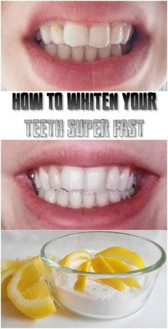 How to whiten your teeth. Squeeze half of a lemon in 1 teaspoon of baking soda and brush teeth