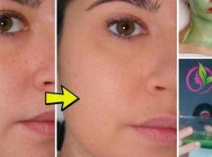 For porcelain-like skin, you only need 3 nights! Beauty Care, Diy Beauty, Beauty Skin, Health And Beauty, Beauty Hacks, Skin Secrets, Diy Skin Care, Anti Aging Skin Care, Natural Skin