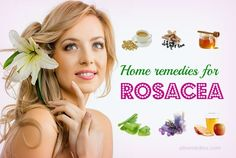 Top 21 natural home remedies for rosacea treatment on face