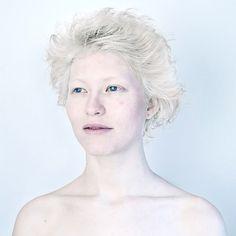 beleza-albina-zupi-1