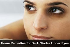 24 Ways to Get Rid of Dark Circles Under Your Eyes