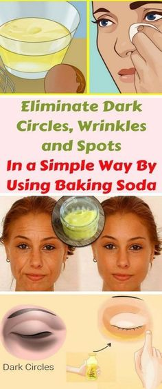 Eliminate Dark Circles, Wrinkles and Spots In a Simple Way By Using Baking Soda - Health and Natural Medicine Baking Soda Bath, Baking Soda And Lemon, Baking Soda Shampoo, Baking Soda Uses, Best Anti Aging, Anti Aging Skin Care, Baking Soda Dark Circles, Baking Soda Benefits, Dark Circles Under Eyes