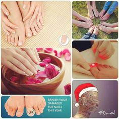 Banish your damage toenails with laser treatments #DrAl  #relaxspa #laser #wellness