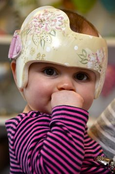 What To Expect When Getting A Helmet For Plagiocephaly Flat Or - Baby helmet decalspersonalized cranial band fairy decals just tinkering