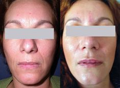 SpectraLift Non-Surgical Facelift - A Facelift Without Surgery! Laser Face Lift, Mini Face Lift, Facelift Without Surgery, Non Surgical Facelift, Neck Lift, Brow Lift, Skin Resurfacing, Facial Rejuvenation, Brows