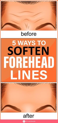 5 Ways To Soften Forehead Lines