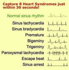 EKG A reason to call so many people Tachy and use it in a medical refrence. Nursing School Tips, Nursing Tips, Nursing Notes, Nursing Programs, Nursing Cheat Sheet, Funny Nursing, Nursing Schools, Medical School, Nclex