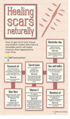 Healing Scars Naturally