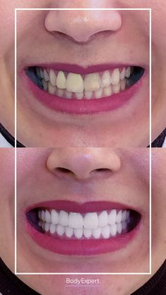 Today, find Ekbal's testimony. She came from France to have 27 zirconia crowns fitted and we love the result! 💜 For more information, please contact us !. #Bodyexpert #Testimony #BeforeAfter #SmilePerfect #ImplantsDental #DentalCrowns #TestimonyDentalCare #PerfectTeeth #MedicalTourism #DentalCare #DentalClinics #Turkey #Istanbul #Hollywoodsmile #Emax Implants Dentaires, Dental Implants, Medical Care, Dental Care, Perfect Teeth, Dental Crowns, Teeth Care, Hair Transplant, Clinique