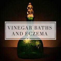 Vinegar baths as an eczema treatment.   http://topeczematreatments.com/vinegar-baths-and-eczema/  #Eczema #Remedies #VinegarBath
