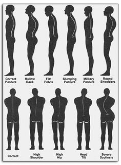 """""""Dr. G, can I correct my poor posture?""""YES – but remember, long-standing postural problems will take time to address as your joints and muscles have adapted to your preferences of the past! Conscious awareness of your body and muscular re-training will help you to correct your posture. This is a very common area of rehabilitation training that I provide with over 85% of my chiropractic patients - often, poor posture can be the culprit for MANY back and neck pain problems!"""