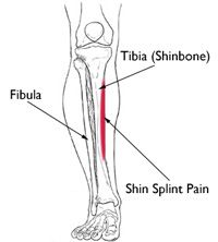 Running   Shin Splints ......... Shin splints typically develop after physical activity. They are often associated with running.  Simple measures can relieve the pain of shin splints. Rest, ice, and stretching often help...... Learn More.....