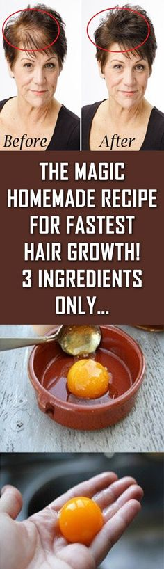 The Magic Homemade Recipe For Fastest Hair Growth! 3 Ingredients Only.
