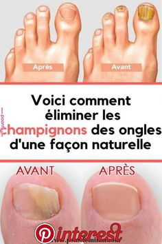 Warze Beauty Tips For Face, Beauty Skin, Beauty Hacks, Infection Fongique, Natural Face Moisturizer, Nail Fungus, Acupressure, Natural Medicine, Manicure And Pedicure