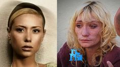 "Image detail for -This story blows away all those ""Faces of Meth"" ads. Jael Strauss was on Cycle 8 of America's Next Top Model a five years ago looking gorgeous, and now her face ..."
