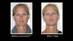 Jeunesse® Global LUMINESCE™ Amazing Before & After Photos 1